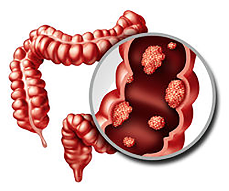 Colon Polyps Conditions
