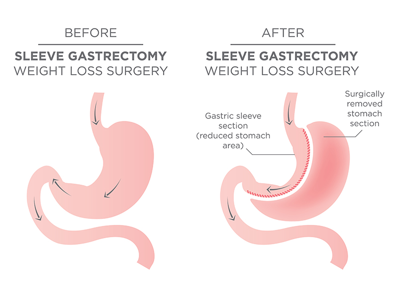 Bariatric Surgery Process